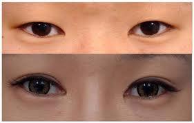 Làm đẹp đôi mắt với bấm mí Hàn Quốc 3