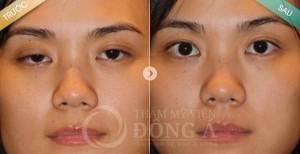 Hình ảnh trước – sau khách hàng chỉnh hình sụp mí bẩm sinh