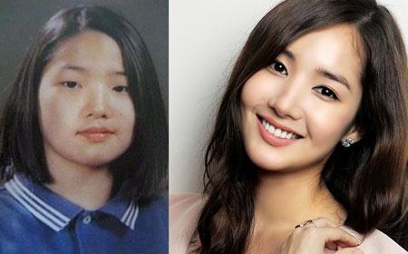 Bấm mí Hàn Quốc đẹp như Park Min Young 2