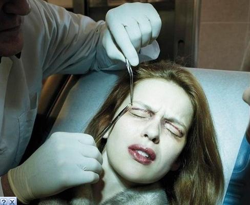 Phẫu thuật cắt mí mắt