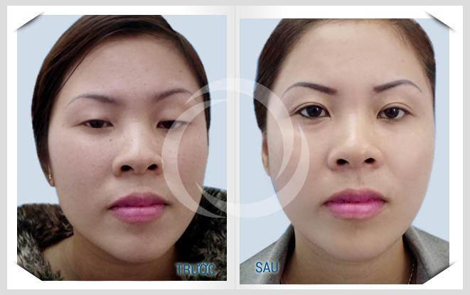 Chuyên gia phân tích kĩ thuật cắt mắt sụp mí 3