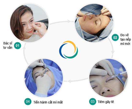 Giải pháp phẫu thuật thẩm mỹ cắt mí mắt hiệu quả nhất 2