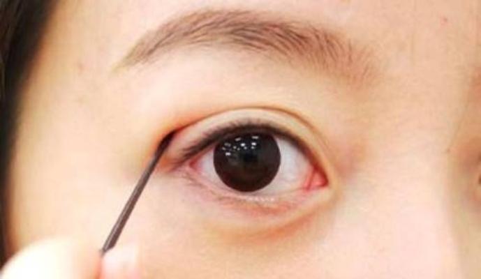 Phẫu thuật làm to mắt diễn ra như thế nào?