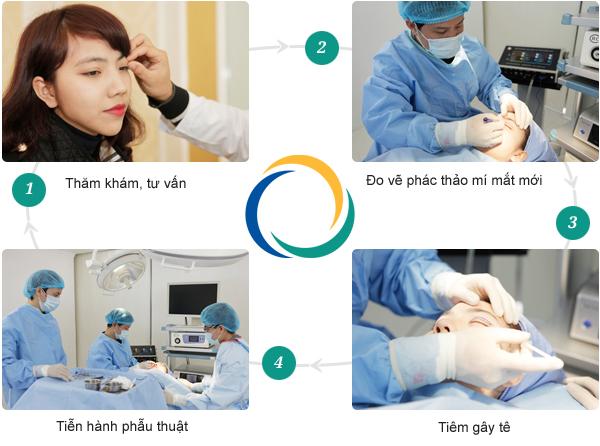 Phẫu thuật mắt sụp mí tạo mắt to tròn, 2 mí tự nhiên 2