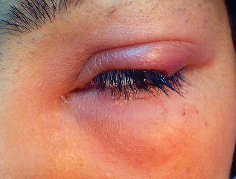 Giải pháp tạo mắt 2 mí không phẫu thuật ưu việt 1
