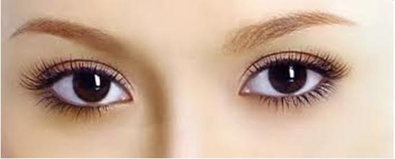 Thẩm mỹ mắt ở đâu đẹp tự nhiên