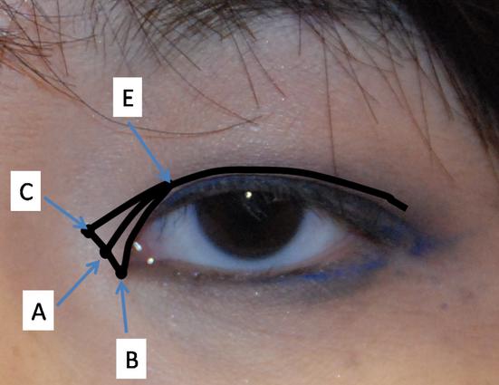 Phẫu thuật cắt khóe mắt như thế nào? 1
