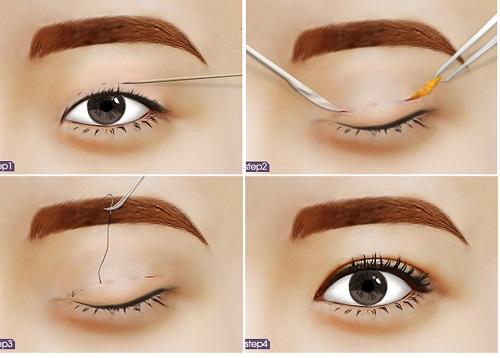Cắt mí mắt Hàn Quốc cho đôi mắt to tròn, long lanh 1