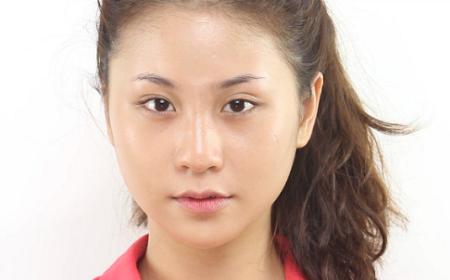 Trường hợp mắt to mắt nhỏ có nhất thiết phải phẫu thuật?