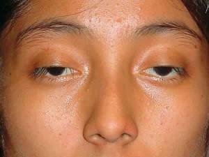 Cách nào chữa sụp mí mắt hiệu quả nhất?