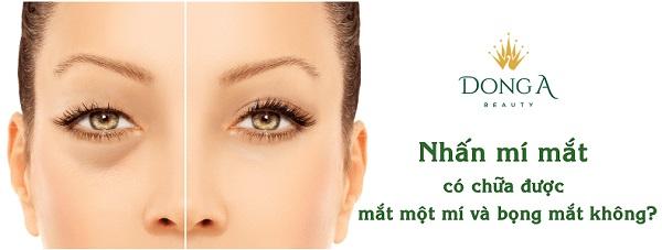 Mắt một mí và có bọng mắt dưới có điều trị bằng nhấn mí mắt được không?