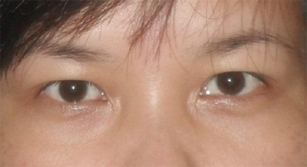 Nhấn mí mắt