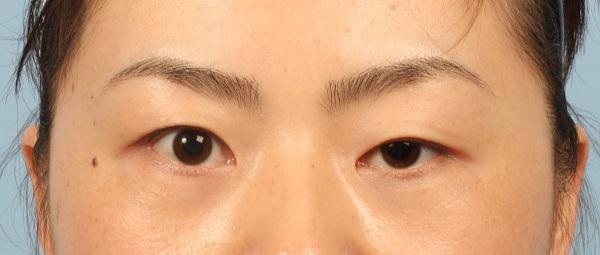 Sụp mí mắt do tai nạn có chữa được không?