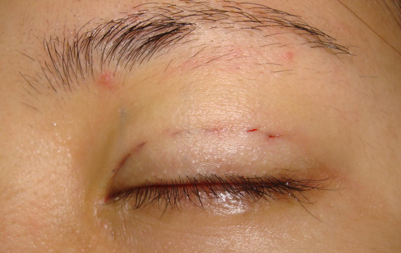 Bất ngờ với phương pháp bấm mí mắt không phẫu thuật1