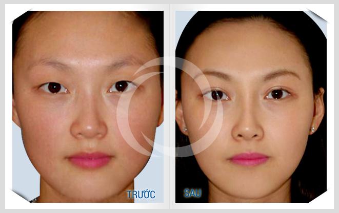 Ưu điểm của nhấn mí mắt không cần phẫu thuật CN Hàn Quốc 1