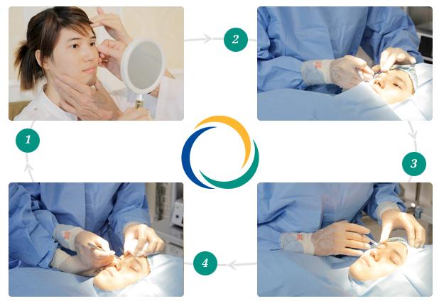 Tổng hợp thông tin về phương pháp bấm mí mắt Hàn Quốc 1