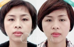 Hình ảnh trước sau Bấm mí và thẩm mỹ mắt công nghệ Hàn Quốc