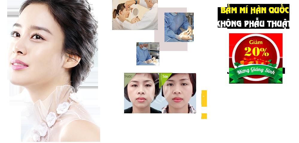Hình ảnh trước sau bấm mí Hàn Quốc