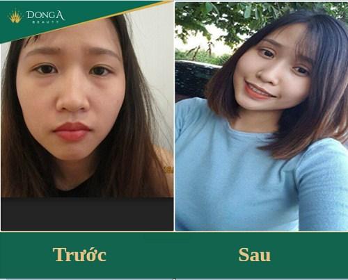Sự khác biệt sau khi cắt mỡ mắt