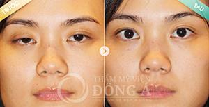 Lấy mỡ mí mắt CN Hàn Quốc - Mắt 2 mí trẻ trung, không còn bọng mỡ 5