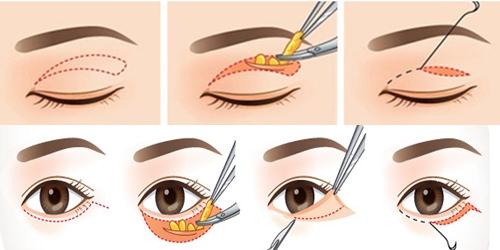 Phẫu thuật lấy mỡ mí mắt