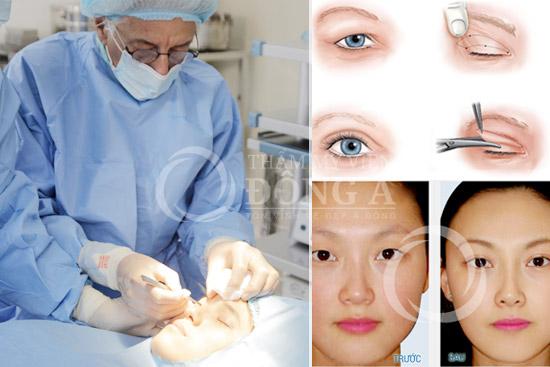 Mắt bị sụp mí có chữa khỏi hoàn toàn được không?