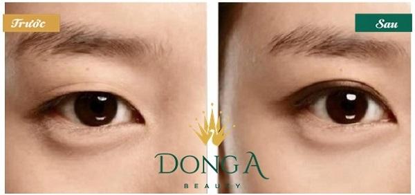 Quy trình cắt mí mắt Hàn Quốc – Chi tiết các bước thực hiện