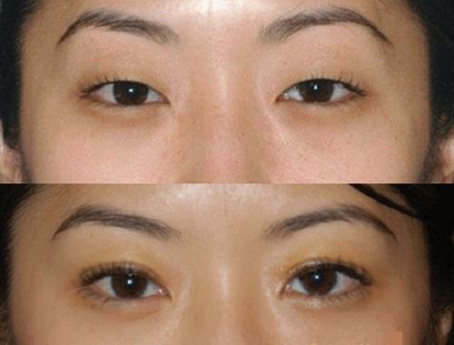 Giải đáp tất tần tật thắc mắc về xăm mí mắt trên