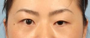 Cách nào phẫu thuật mắt sụp mí nhanh nhất hiện nay?