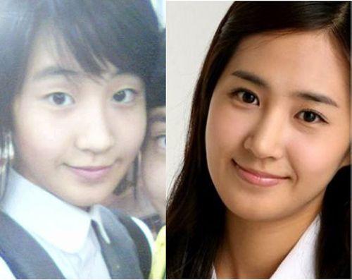 """""""Giật mình"""" những đôi mắt mí lót của Sao Hàn trước khi bấm mí"""