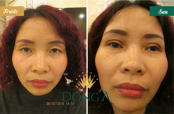 Hình ảnh trước và sau thẩm mỹ mắt