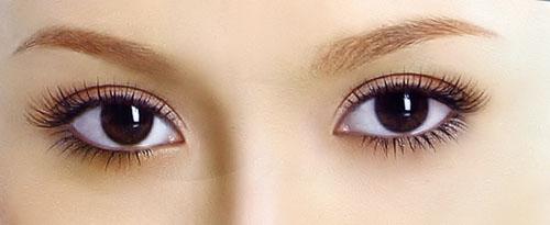 Mắt xếch - Mắt lệch - Mắt bị trợn: Giải pháp nào khắc phục toàn diện?