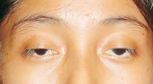 cách làm mắt to tự nhiên