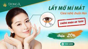 Lấy mỡ mí mắt CN Hàn Quốc – Mắt 2 mí trẻ trung, không còn bọng mỡ