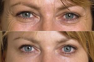 Những điều cần biết khi trị bọng mỡ mắt bằng kem