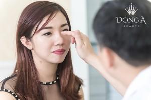Dịch vụ cắt mí mắt giá bao nhiêu tiền tại Hà Nội?