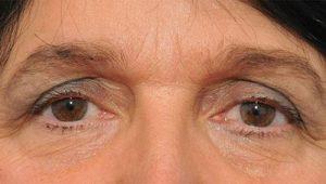 Sụp mí mắt ở người già có nên phẫu thuật không?