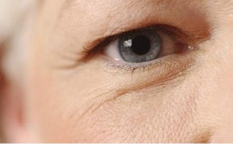 Quy trình chữa sụp mí mắt ở người già như thế nào?