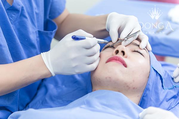 Kỹ thuật Cắt mắt 2 mí phù hợp với những khách hàng nào?