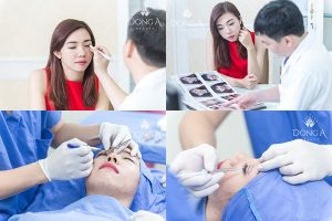 TOP 1 TMV có chi phí bấm mí mắt rẻ và tốt nhất trên toàn quốc