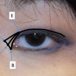 Phẫu thuật tạo khóe mắt giá bao nhiêu?