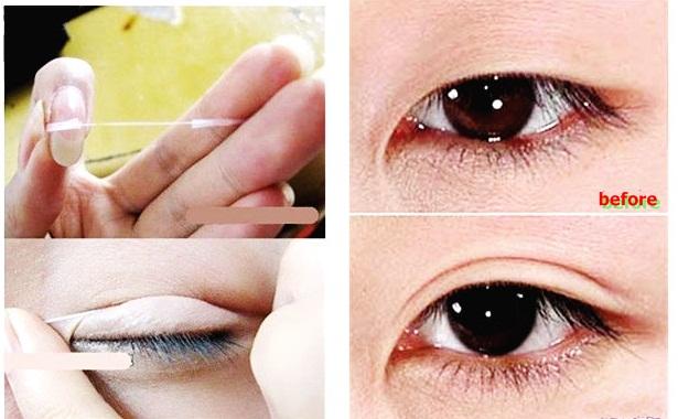 Sử dụng chỉ tạo mí để có được đôi mắt 2 mí