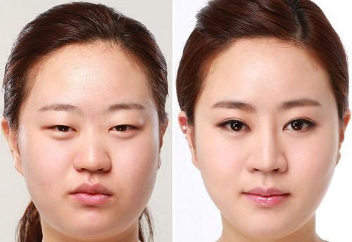 Phẫu thuật tạo khóe mắt có gây nguy hiểm không?