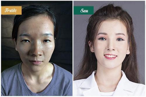 Sau phẫu thuật Cắt mí, Hà Ny biến đổi hoàn toàn trở nên tươi tắn và trẻ trung hơn.