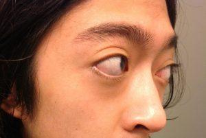 Nghe bác sỹ hướng dẫn cách chữa mắt lồi bẩm sinh an toàn và hiệu quả