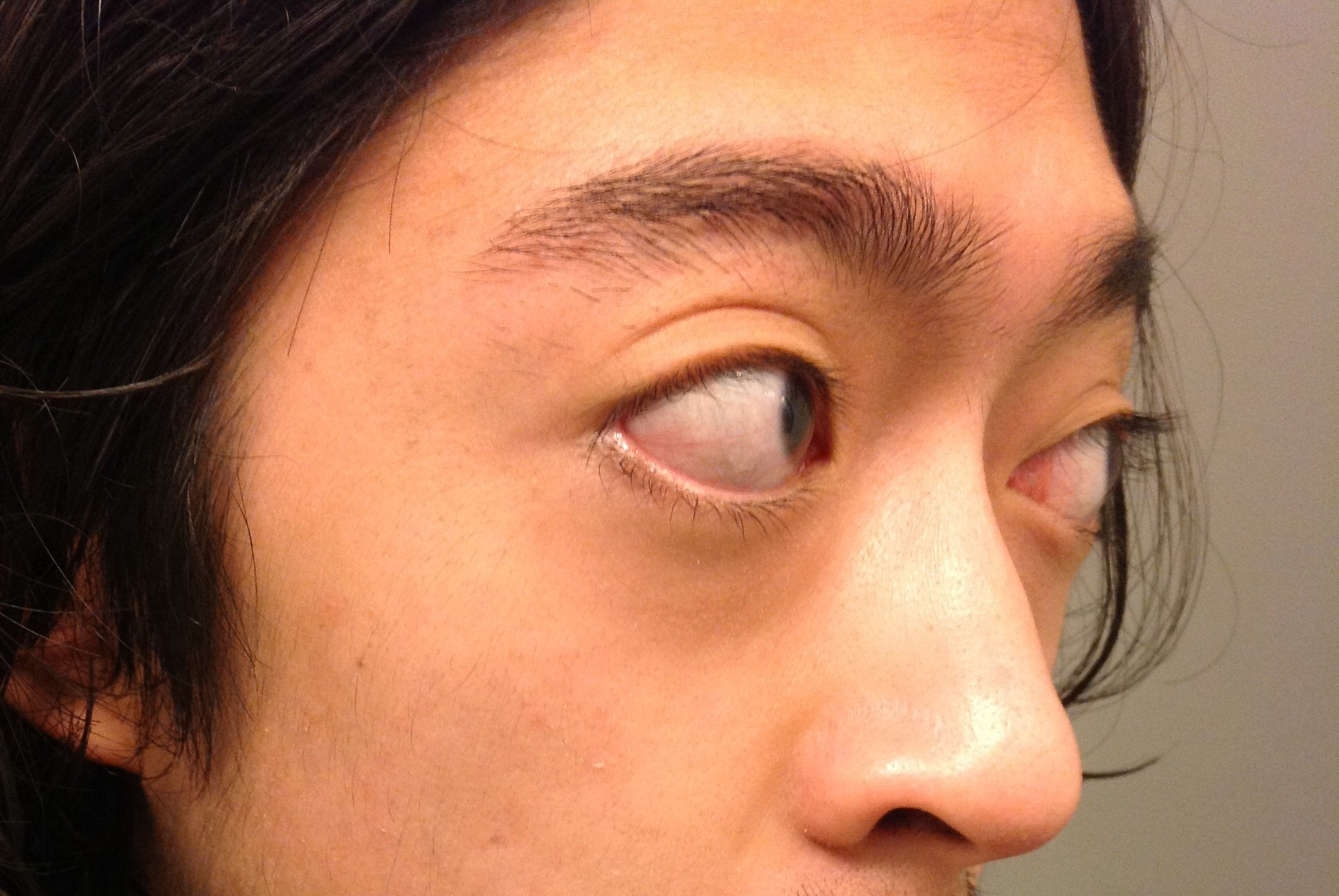 Mắt lồi bẩm sinh phải làm sao?