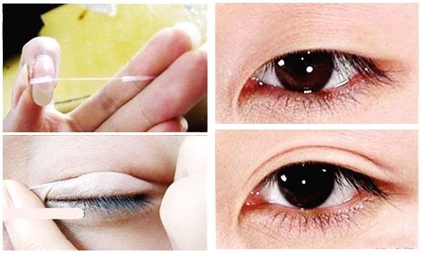 tạo mắt 2 mí