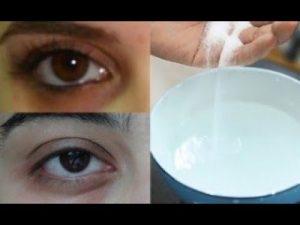 Mắt sưng mọng nước phải làm sao? Top 10 cách khắc phục mắt sưng mọng nước