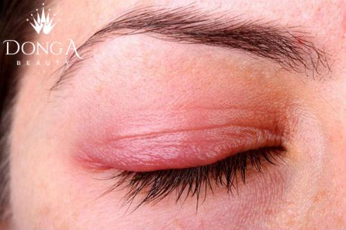 Nhờ cậy cách dùng chỉ kích mí mắt không phải giải pháp lâu dài cho mắt