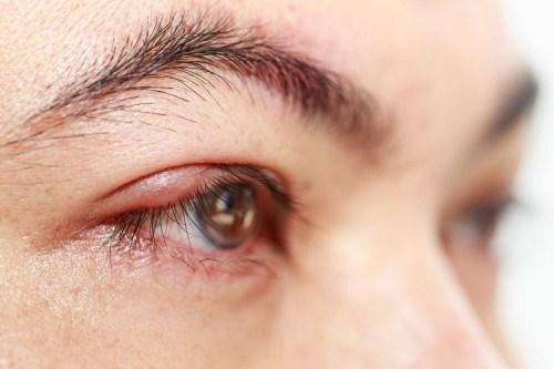 Cắt mí mắt có để lại sẹo không?